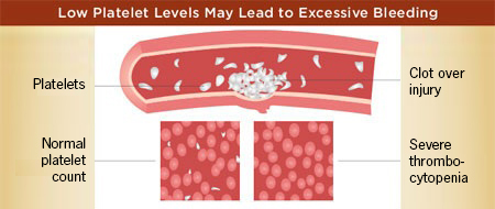 Low Platelet Levels May Lead to Excessive Bleeding