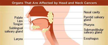 Organs affected by head and neck cancer